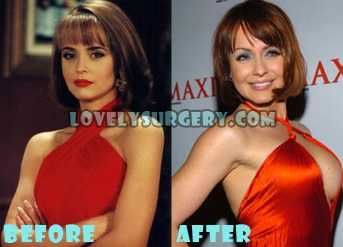Gabriela Spanic Plastic Surgery Breast Implant