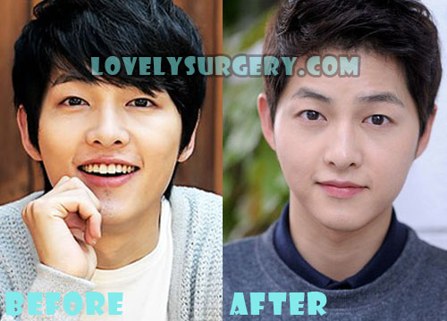 Song Joong Ki Plastic Surgery