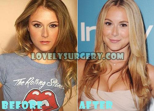 Alexa Vega Plastic Surgery Boob Job