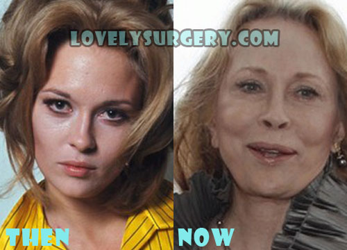 Faye Dunaway Bad Plastic Surgery