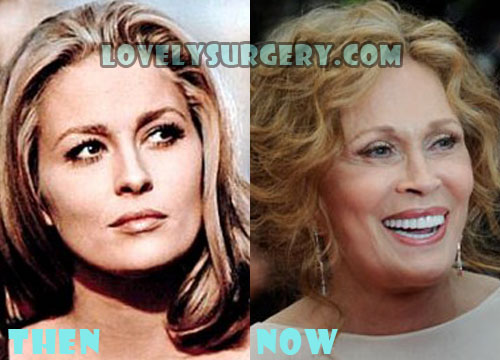 Faye Dunaway Plastic Surgery Gone Wrong