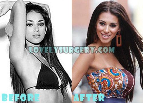 Georgia Salpa Plastic Surgery Breast Implant