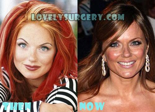 Geri Halliwell Plastic Surgery Botox