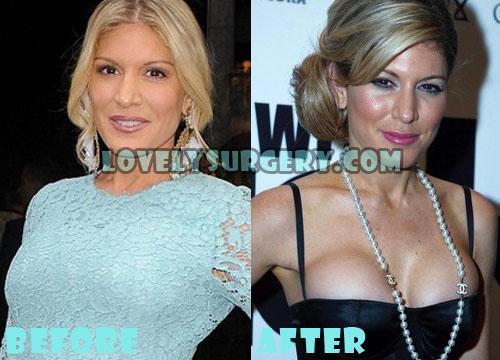 Hofit Golan Plastic Surgery Boob Job