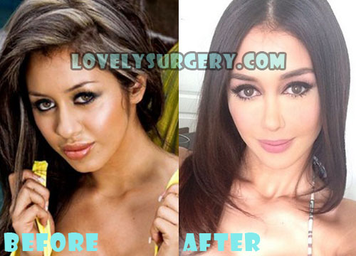 Joselyn Cano Plastic Surgery Nose Job