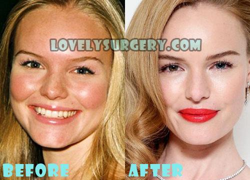 Kate Bosworth Plastic Surgery Nose Job