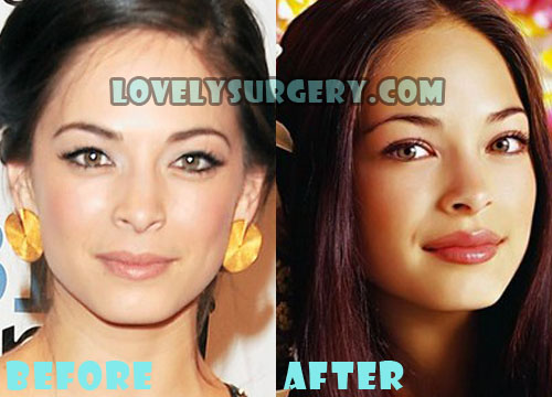 Kristin Kreuk Plastic Surgery Lip Injection