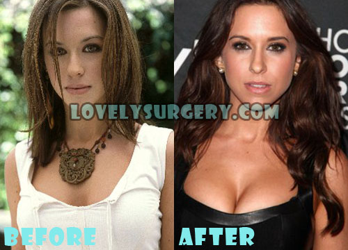 Lacey Chabert Plastic Surgery Breast Implant