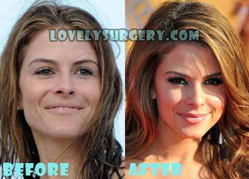 Maria Menounos Plastic Surgery Nose Job