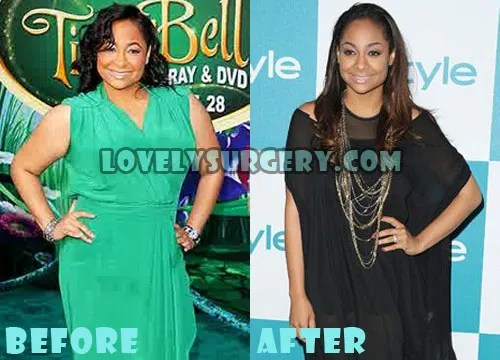 Raven Symone Plastic Surgery Liposuction