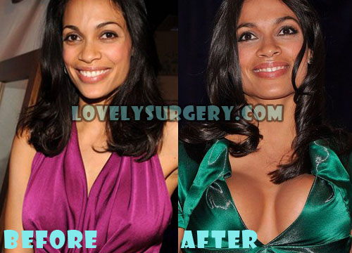 Rosario Dawson Plastic Surgery Breast Implant