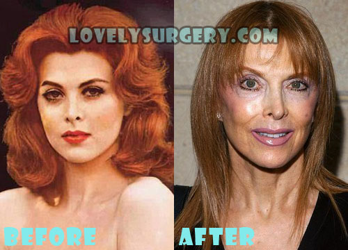 Tina Louise Plastic Surgery Facelift Gone Wrong