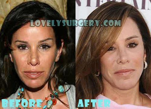 Melissa Rivers Plastic Surgery Botox