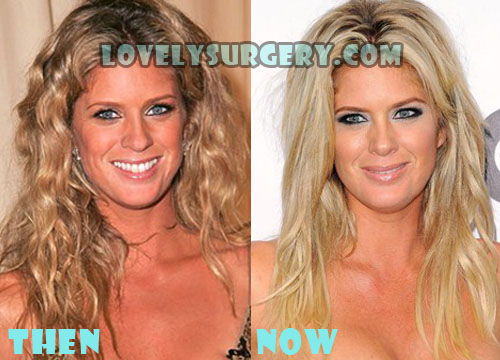 Rachel Hunter Plastic Surgery Rumor