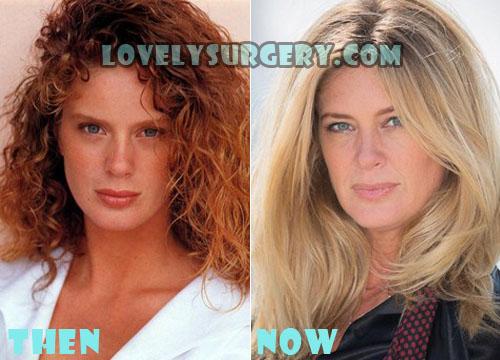 Rachel Hunter Plastic Surgery