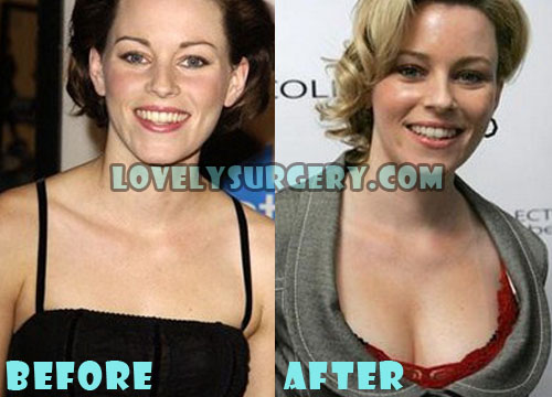 Elizabeth Banks Plastic Surgery Boob Job
