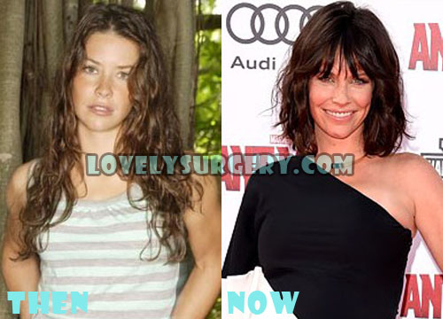 Evangeline Lilly Plastic Surgery