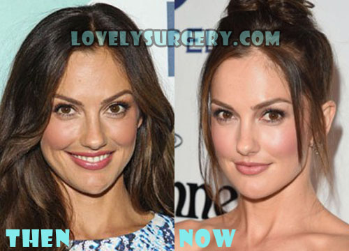 Minka Kelly Plastic Surgery Botox
