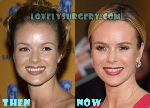 Amanda Holden Plastic Surgery Botox, Facelift
