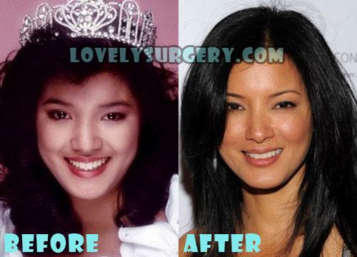 Kelly Hu Plastic Surgery Nose Job
