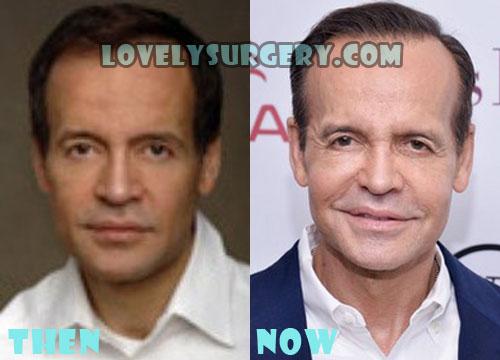 Louis Licari Plastic Surgery Botox, Facelift