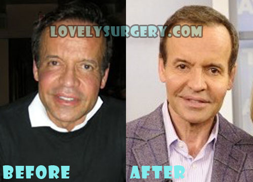 Louis Licari Plastic Surgery Lip Surgery