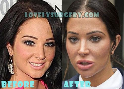 Tulisa Contostavlos Bad Plastic Surgery