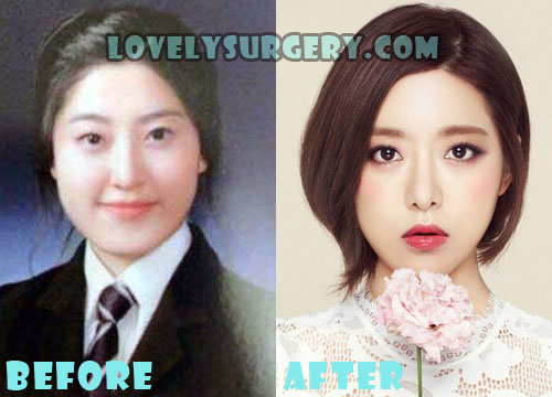 DJ Soda Plastic Surgery