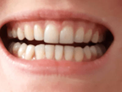tooth decay on a vegan diet after braces