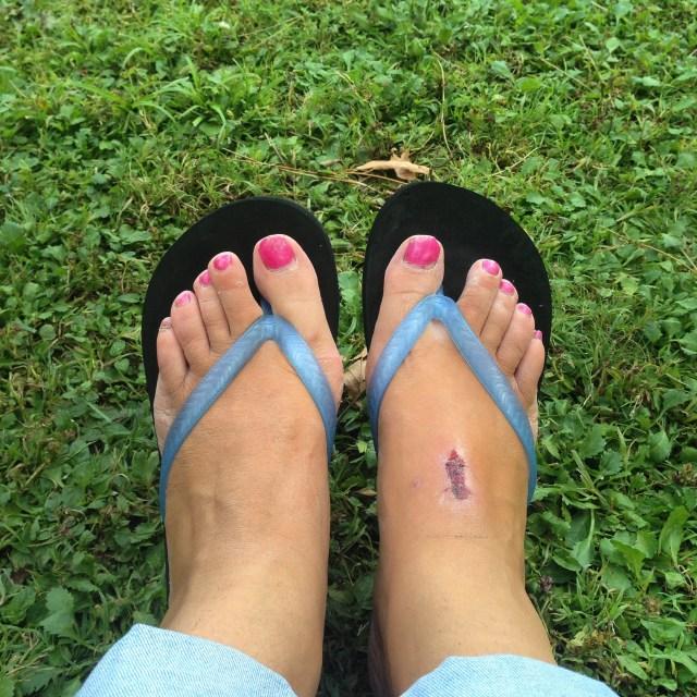 Die plek op mijn voet is nog steeds verrot