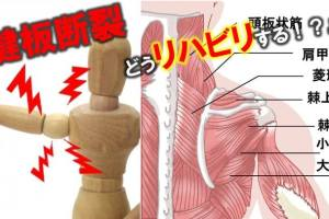 回線筋腱板断裂、リハビリ、方法