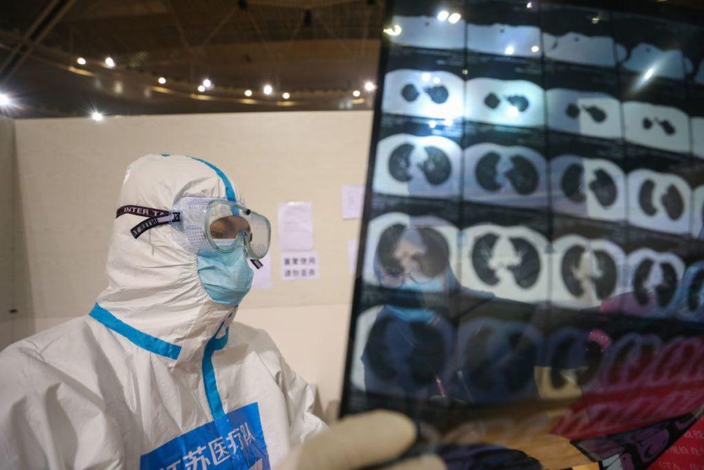Một bác sĩ đang đọc hình chụp CT của một bệnh nhân COVID-19 ở Vũ Hán, Trung Quốc, ngày 5/3/2020. Ảnh: Barcroft Media via Getty Images.