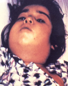 "child with diphtheria presented with a characteristic swollen neck, sometimes referred to as ""bull neck"". Diphtheria is an acute bacterial disease involving primarily the tonsils, pharynx, larynx, nose, skin, and at times other mucous membranes. The mucosal lesion is marked by a patch or patches of an adherent grayish membrane with a surrounding inflammation."