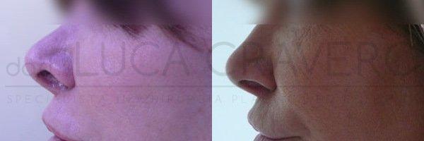 Rinofiller. Correzione del naso senza chirurgia [foto] 4.2