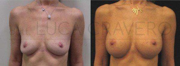 Mastoplastica Additiva. Protesi anatomiche 3.1
