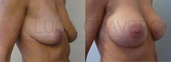 Mastoplastica Additiva. Protesi anatomiche 5.3