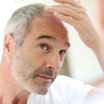 PRP - Terapie rigenerative del cuoio capelluto