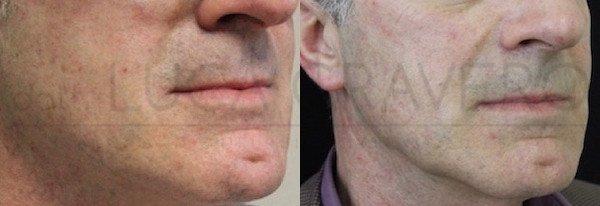 ultherapy [foto prima e dopo] 24.05.19 case 3 dr cravero