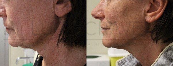 ultherapy [foto prima e dopo] 24.05.19 case 4 dr cravero
