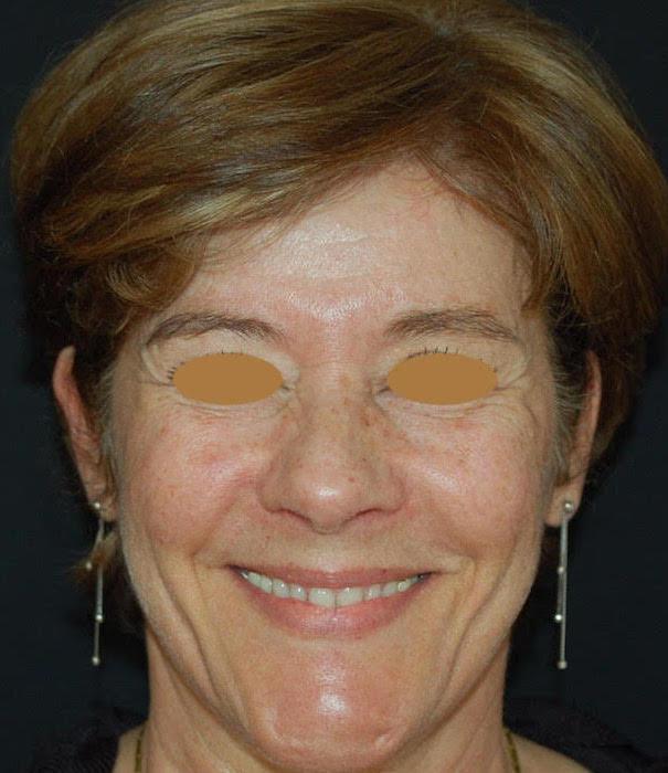 ritidoplastica trattamento