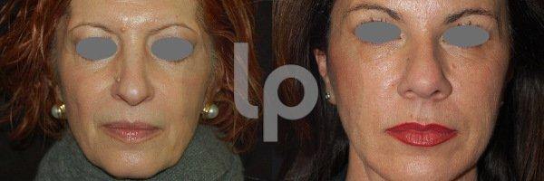 Liquid Lifting_viso completo 1
