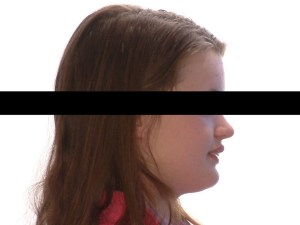 Side profile of girl before orthodontic treatment