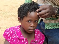 Resolve: poor little champion with measles