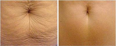 Lutte contre le relâchement de la peau