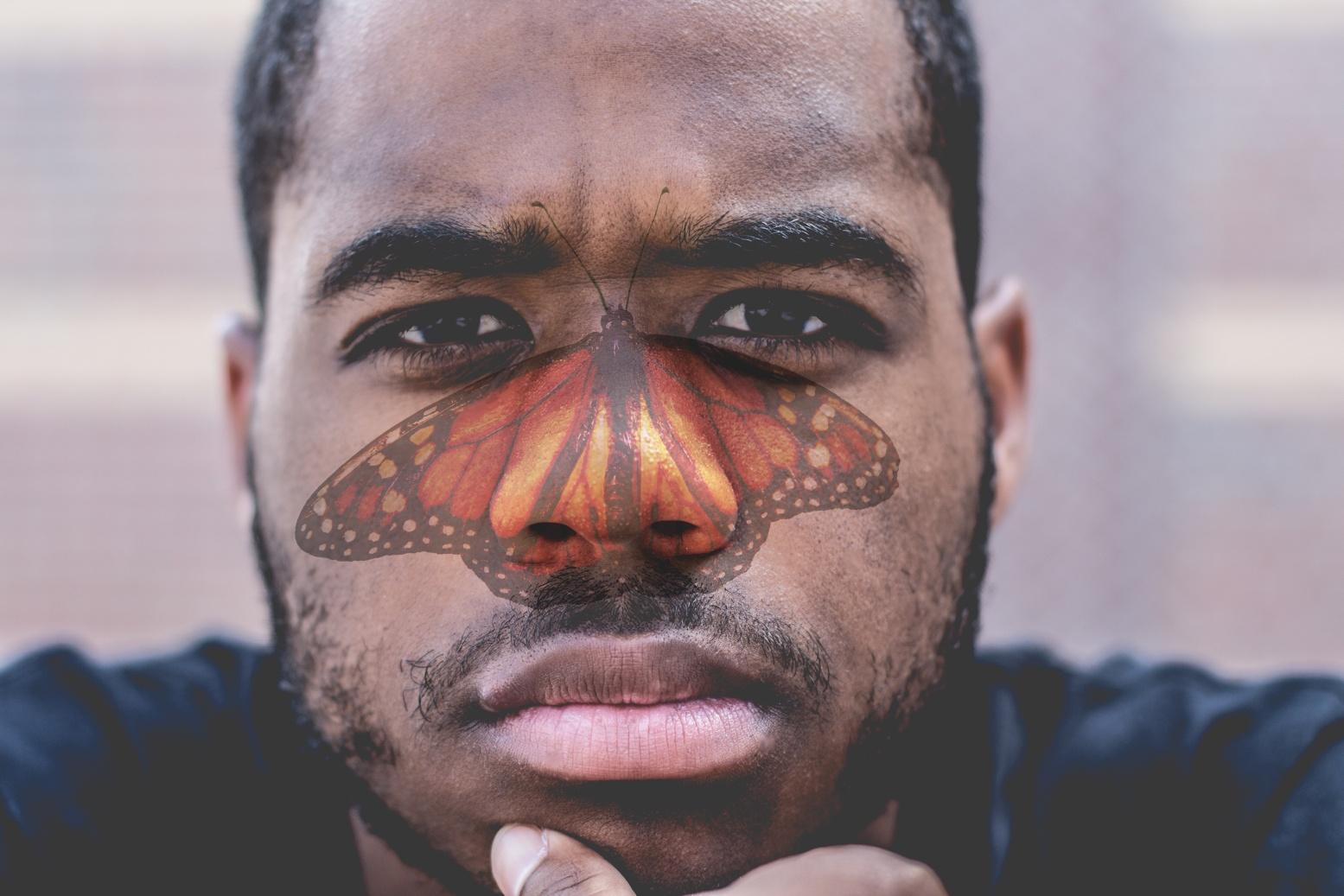 Butterfly Rash Malar Flush