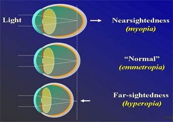 what-is-a-stigmatism-in-your-eye