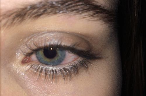 causes-of-blurred-vision