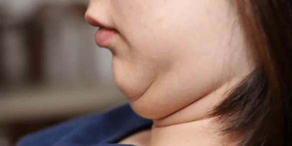 Double Chin, Effective Remedies and Exercise to Get Rid of Double Chin