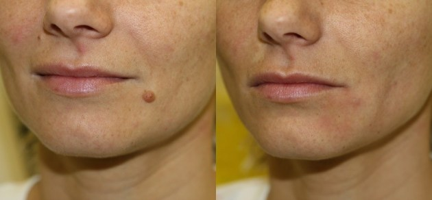 Facial Moles, How to Remove Facial Moles | Causes, Remedies, Treatments