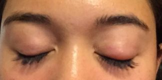 how-to-get-rid-of-a-swollen-eye-fast
